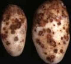 Normal scab or scab disease in potatoes